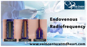 Endovenous Radiofrequency,  Radiofrequency Ablation Veins